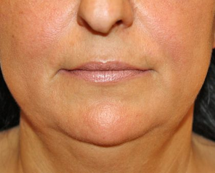 Fillers Before & After Patient #1078