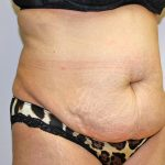 Tummy Tuck Before & After Patient #719