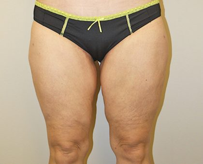 Thigh Lift Before & After Patient #1375