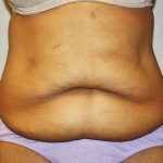 Tummy Tuck Before & After Patient #489