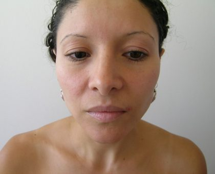 Rhinoplasty Before & After Patient #1352