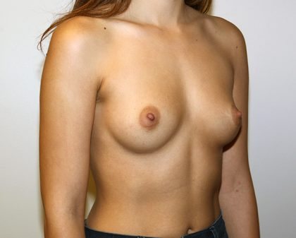 Breast Augmentation Before & After Patient #1424