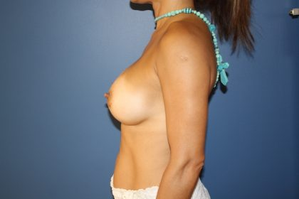 Breast Augmentation Before & After Patient #1507