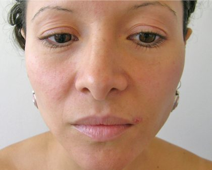 Eyelid Surgery Before & After Patient #757