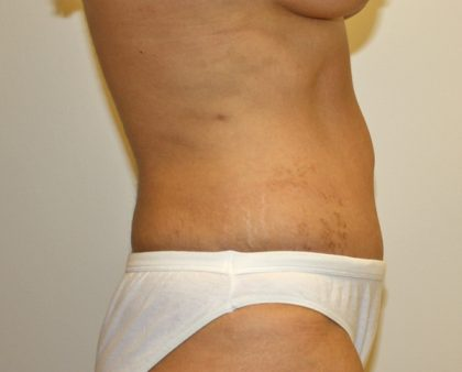 Tummy Tuck Before & After Patient #577