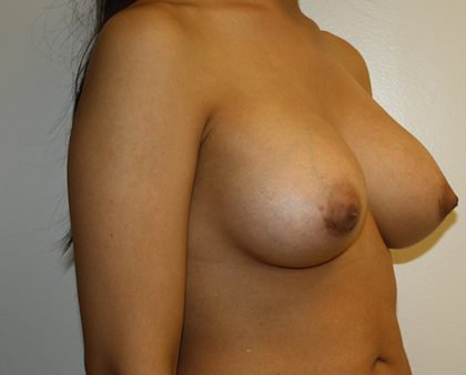 Breast Augmentation Before & After Patient #1409