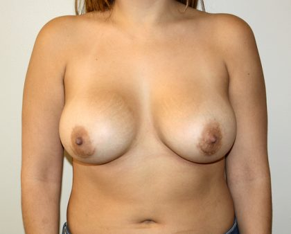 Breast Augmentation Before & After Patient #1716