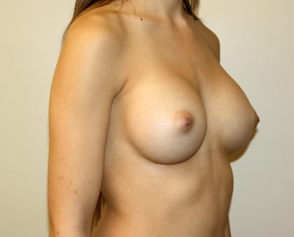 Breast Augmentation Before & After Patient #1737