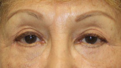 Eyelid Surgery Before & After Patient #743