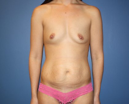 Breast Augmentation Before & After Patient #1460