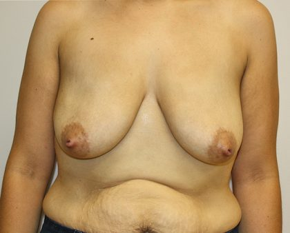 Breast Lift Before & After Patient #827