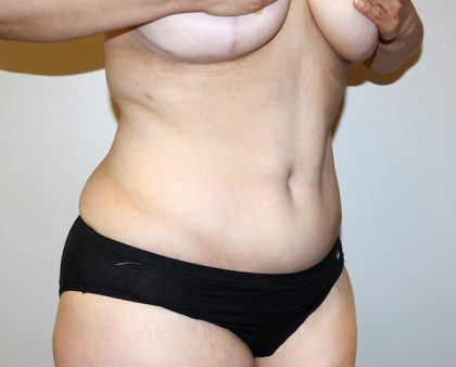 Tummy Tuck Before & After Patient #535