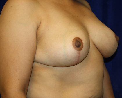 Breast Reduction Before & After Patient #1024