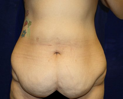 Tummy Tuck Before & After Patient #563