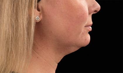CoolSculpting Before & After Patient #1912