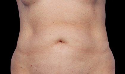 CoolSculpting Before & After Patient #1903