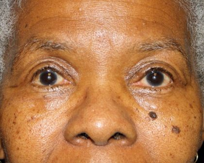 Eyelid Surgery Before & After Patient #1884