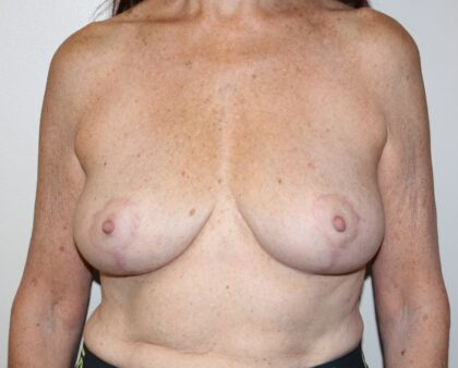 Breast Implant Removal Before & After Patient #2312