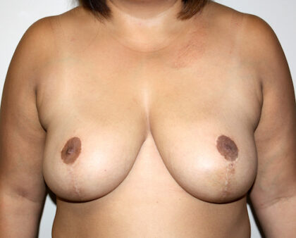 Breast Reduction Before & After Patient #2392
