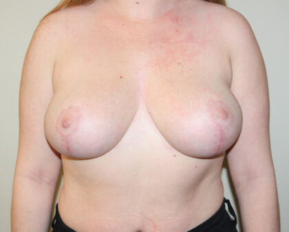 Breast Reduction Before & After Patient #2399