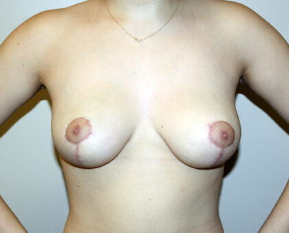 Breast Reduction Before & After Patient #2407