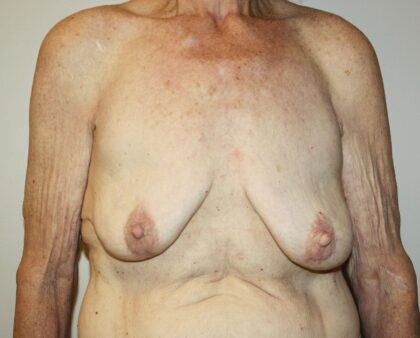 Breast Augmentation Before & After Patient #2334