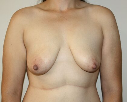 Breast Lift Before & After Patient #2326