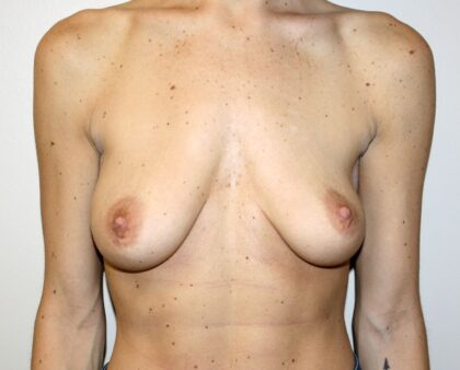 Breast Lift Before & After Patient #2341