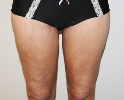 Thigh Lift Before & After Patient #2518