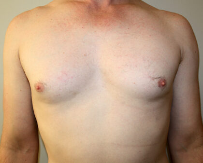 Male Breast Reduction Before & After Patient #2461