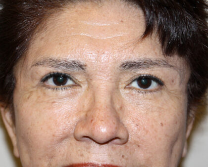 Eyelid Surgery Before & After Patient #2426