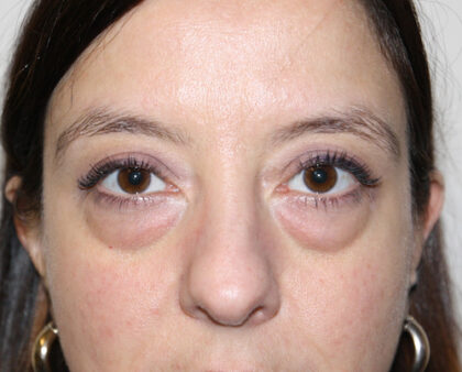 Eyelid Surgery Before & After Patient #2433