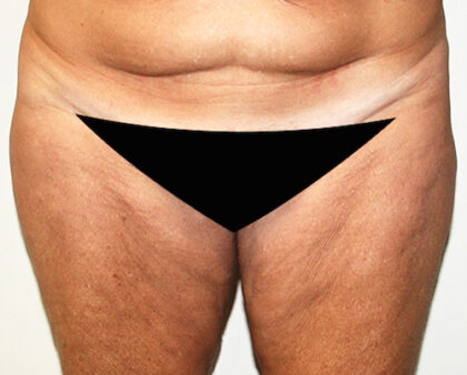 Thigh Lift Before & After Patient #2526