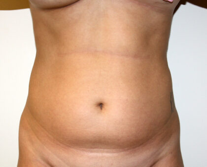 Liposuction Before & After Patient #2468