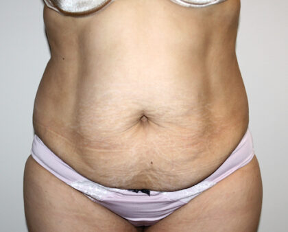Tummy Tuck Before & After Patient #2597