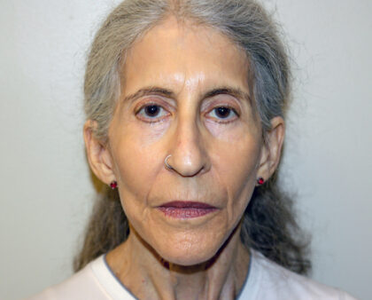 Facelift Before & After Patient #2447