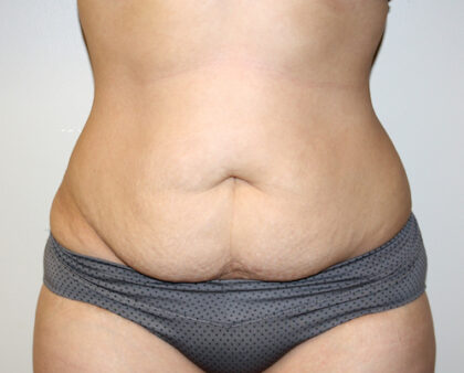 Tummy Tuck Before & After Patient #2611