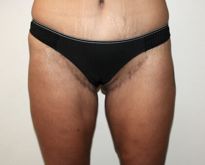 Thigh Lift Before & After Patient #2533