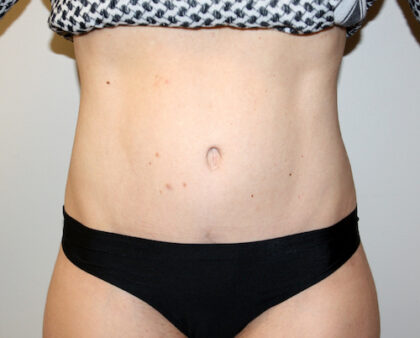Tummy Tuck Before & After Patient #2632