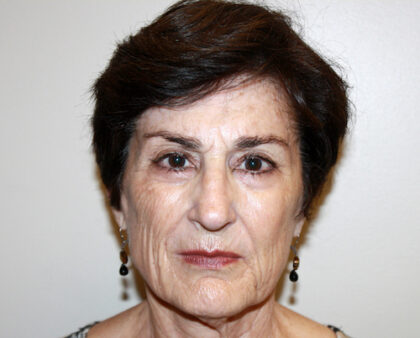 Facelift Before & After Patient #2454