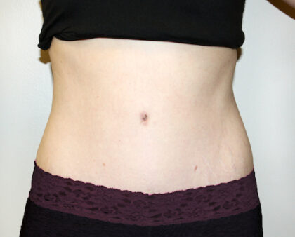 Tummy Tuck Before & After Patient #2639