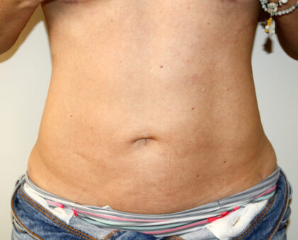 Liposuction Before & After Patient #2475