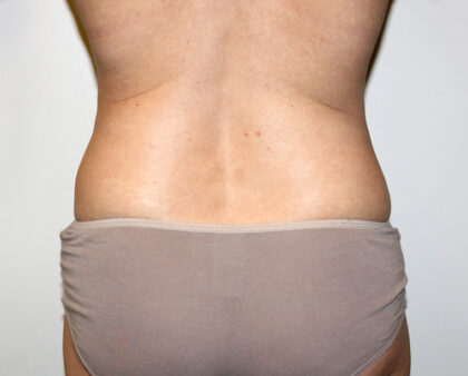 Liposuction Before & After Patient #2482