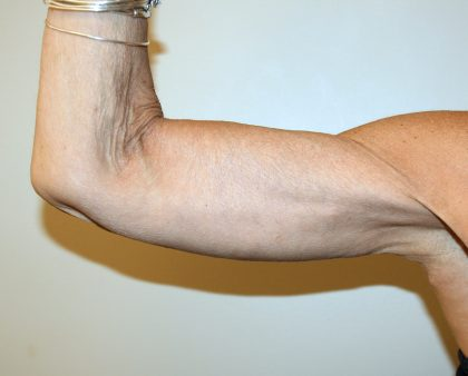 Arm Lift Before & After Patient #2680