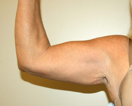 Arm Lift Before & After Patient #2689