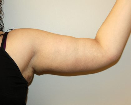 Arm Lift Before & After Patient #2698